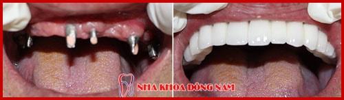 giá cắm ghép răng implant bao nhiêu tiền -15
