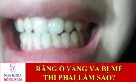hai hàm răng ố vàng và bị mẻ thì phải làm sao -1