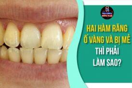 Hai hàm răng ố vàng và có cái bị mẻ thì phải làm sao