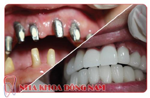 hình ảnh cấy ghép răng implant