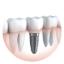 dịch vụ nha khoa cấy ghép implant
