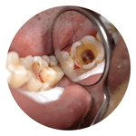 nha khoa điều trị viêm tủy răng