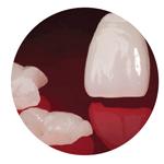 dịch vụ nha khoa làm mặt dán sứ