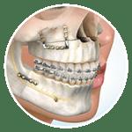 dịch vụ nha khoa phẫu thuật hàm