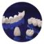 dịch vụ nha khoa trồng răng sứ