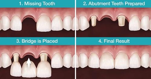 làm cầu răng sứ có sử dụng vĩnh viễn được không 2