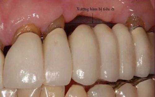 làm cầu răng sứ có sử dụng vĩnh viễn được không 3