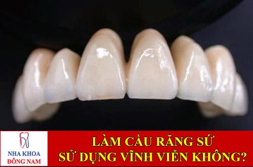 làm cầu răng sứ có sử dụng vĩnh viễn được không -1