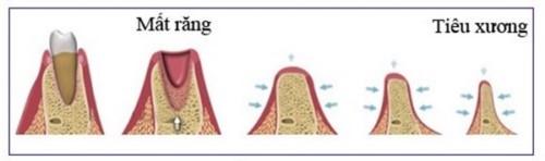 tiêu xương sau khi mất răng