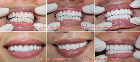 trường hợp làm răng sứ 2 hàm