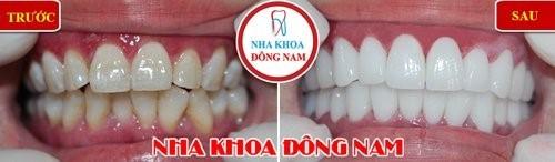 bọc sứ cho răng ố vàng, men răng không đều