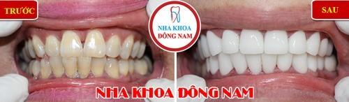 bọc sứ cho răng ố vàng và hở kẽ