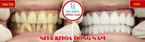 bọc răng sứ thẩm mỹ cho răng mọc không đều