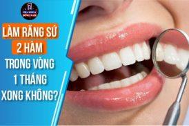 làm răng sứ 2 hàm trong vòng 1 tháng xong không