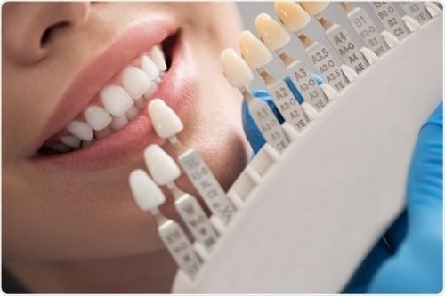 làm răng sứ 2 hàm trong vòng 1 tháng xong không 2