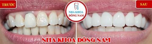 thay răng sứ kim loại bằng răng sứ toàn sứ