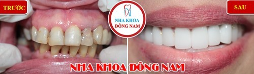 bọc sứ cho 2 hàm cho răng hô
