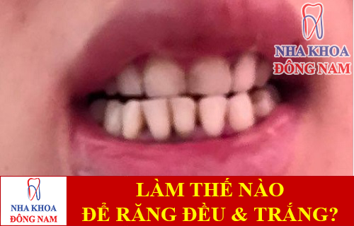 làm thế nào để răng đều và trắng hơn -1