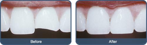 mài răng bị mẻ -2