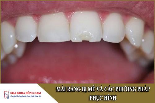 mài răng bị mẻ và các phương pháp phục hình