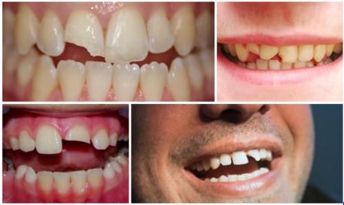 mài răng bị mẻ và các phương pháp phục hình 1