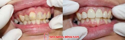 mài răng bọc sứ có ảnh hưởng đến tủy không 4