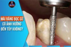 mài răng bọc sứ có ảnh hưởng đến tủy không