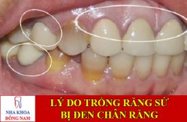 nguyên nhân trồng răng sứ bị đen chân răng -1