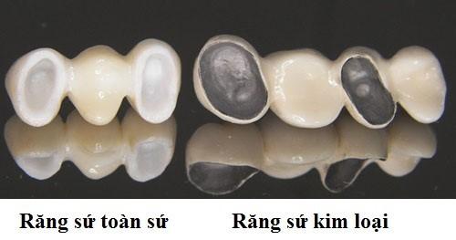 nguyên nhân trồng răng sứ bị đen chân răng