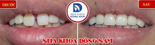 bọc sứ cho răng cửa bị lệch và thưa