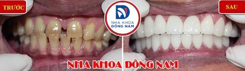 bọc răng sứ thẩm mỹ cho 2 hàm răng thưa và ố vàng