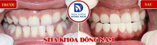 bọc sứ cho hàm răng móm và thưa