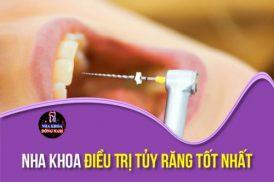 nha khoa điều trị tủy răng tốt nhất tphcm