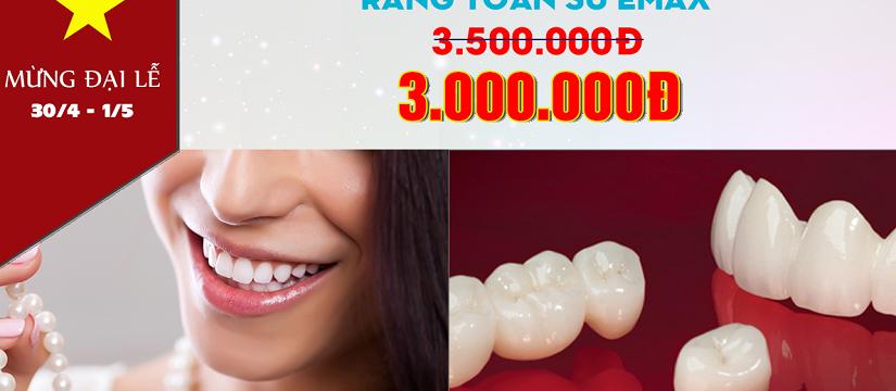 nha khoa giảm giá răng sứ emax nhân dịp 30 tháng 4 -1
