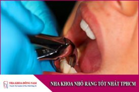 nha khoa nhổ răng tốt nhất tphcm