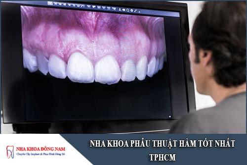 nha khoa phẫu thuật hàm tốt nhất tphcm