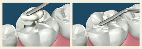 nha khoa trám răng tốt nhất tphcm -2