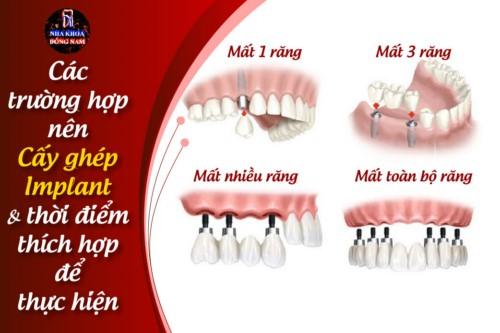 Những Trường Hợp Nào Nên Cấy Ghép Răng Implant?