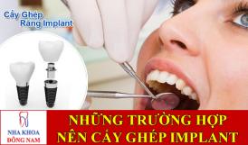 những trường hợp nào nên cấy ghép răng implant -1