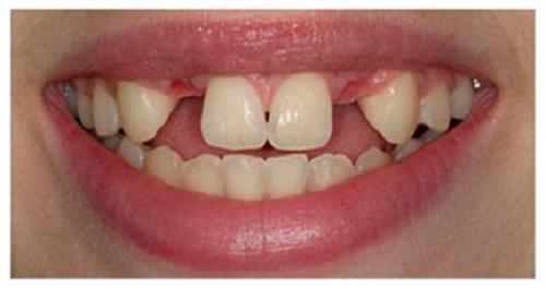 những trường hợp nào nên cấy ghép răng implant -2