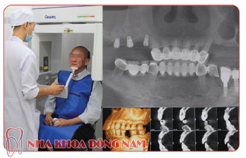 những trường hợp nào nên cấy ghép răng implant -7