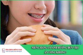 niềng răng có ảnh hưởng đến việc ăn uống không