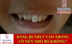 răng bị thụt vào trong có nên nhổ bỏ không -1