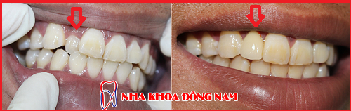 răng bị thụt vào trong có nên nhổ bỏ không -2