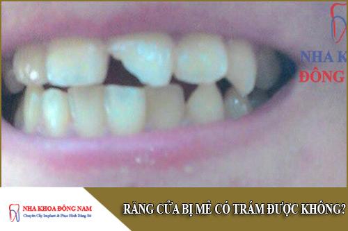 răng cửa bị mẻ có trám được không
