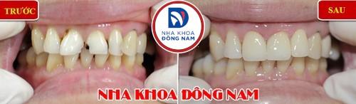 răng cửa bị mẻ có trám được không 1