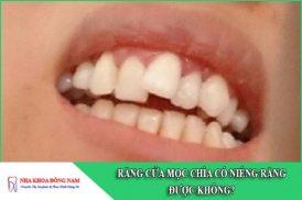 răng cửa mọc chìa có niềng răng được không