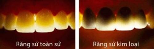 răng toàn sứ và răng sứ kim loại