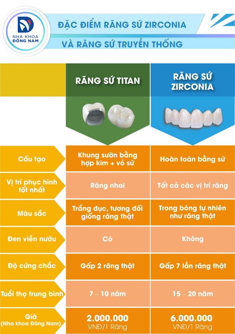 so sánh răng sứ