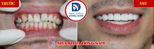 trồng răng sứ 2 hàm